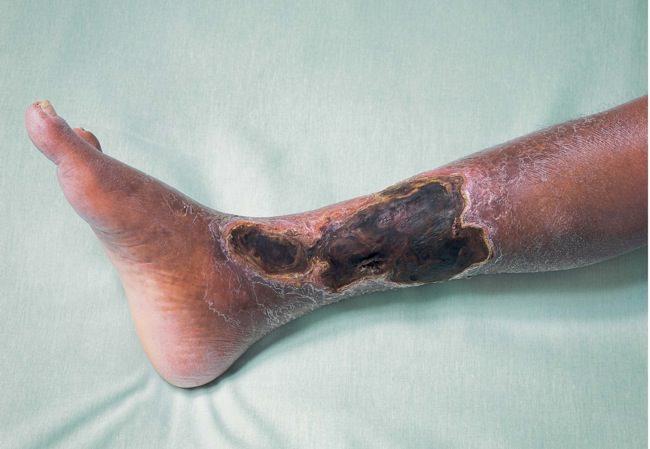 Курение вредит здоровью - Облитерирующий эндартериит