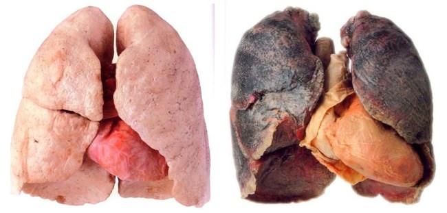 Легкие курильщика