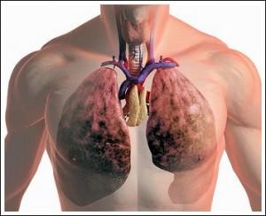В 2011 году смертность от онкозаболеваний, вызванных курением, сократилась на 1 %