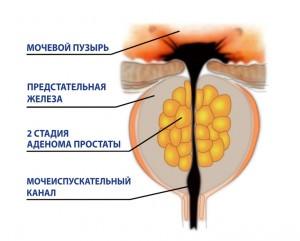 muzhchini-vnimanie-giperplaziya-predstatelnoy-zhelezi