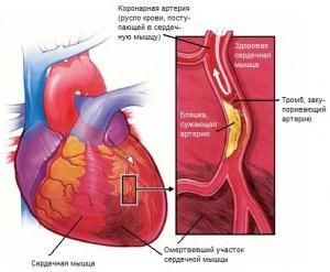 Инфаркт миокарда – симптомы, лечение, последствия и
