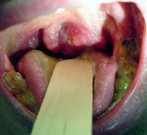 Народные средства вылечить спайки кишечника