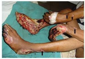 Пурпура тромбоцитопеническая у детей причины и лечение