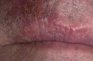 Болезнь фордайса