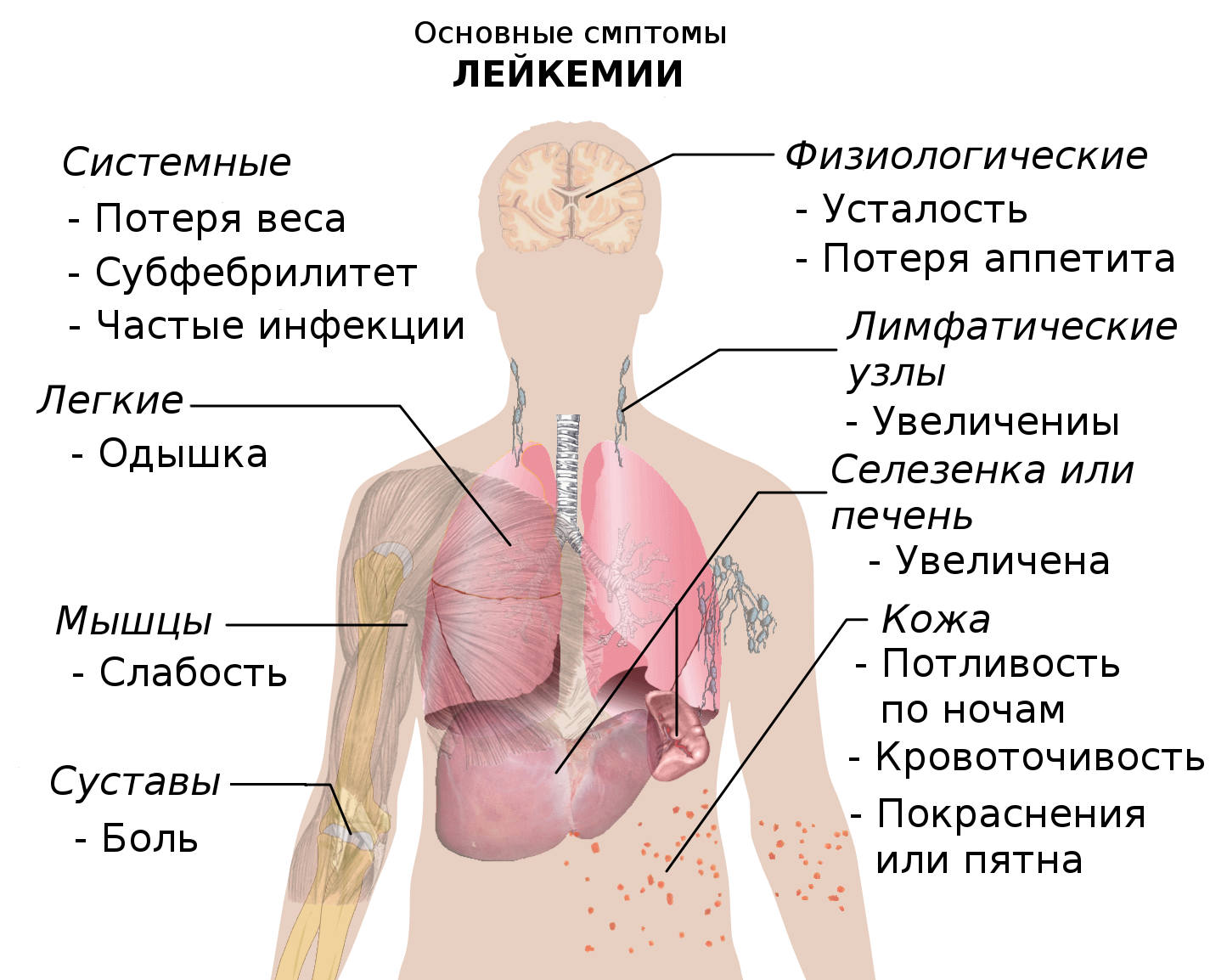 Лейкемия фото