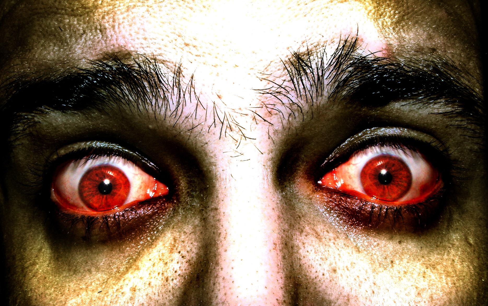 красные глаза у человека фото топиарии каталога