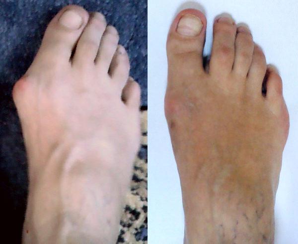 Причины отказа ног у человека