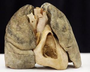 Эмфизема легких причины заболевания