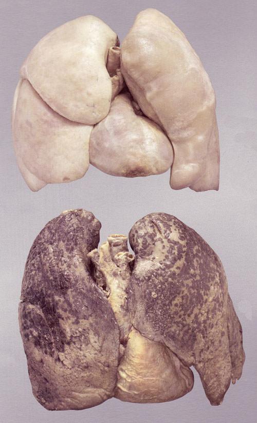 клетки курильщика картинки причина