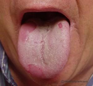 Белый налет на языке от курения